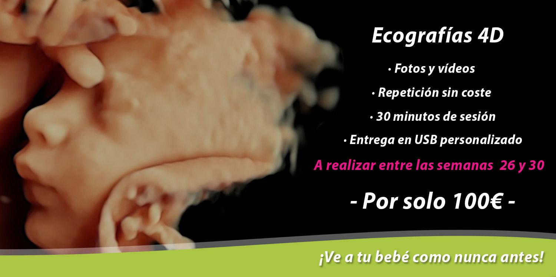 ecografias-4d-barcelona-ginecologia-doctoras-perez-obgyn