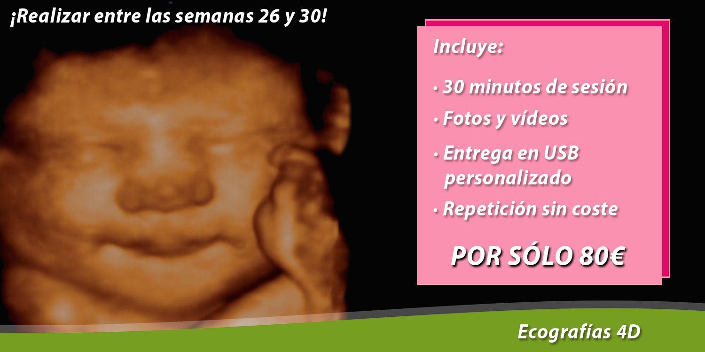 ecografias-ecos-4d-gineologia-usb-fotos-videos-barcelona