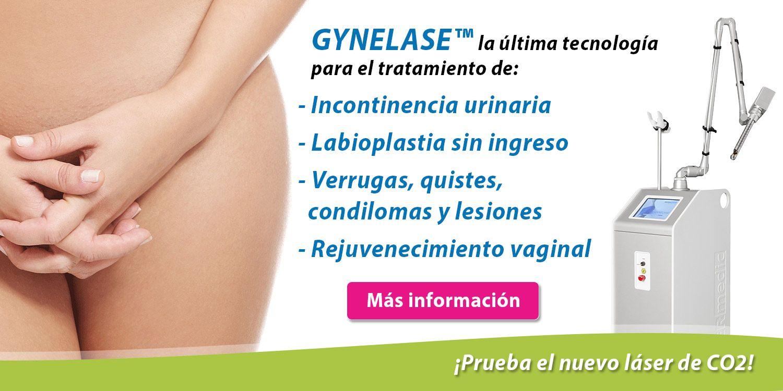 laser-vaginal-barcelona-labioplastia