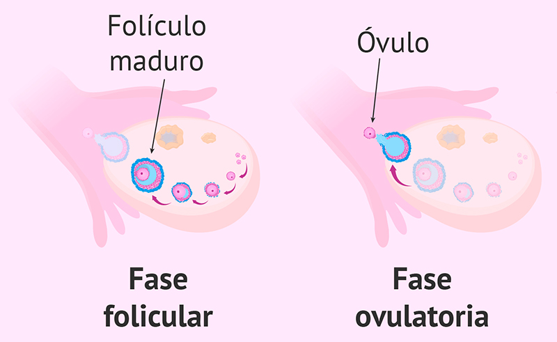 Ovario poliquístico Vacuna papiloma